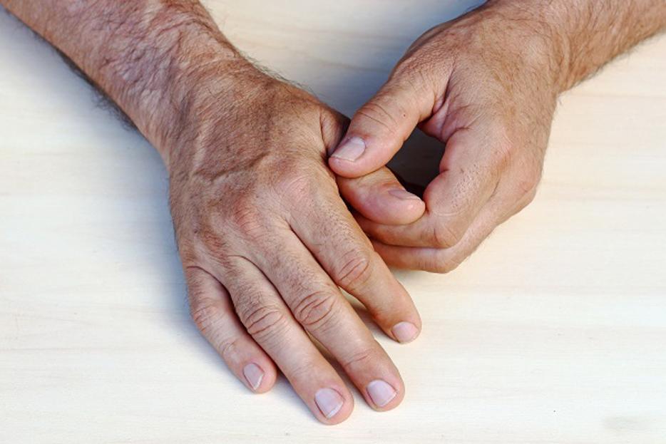 Fingergelenkarthrose - In 9 Schritten schmerzfrei !